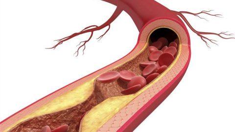Xơ vữa động mạch: Hiểu đúng tác hại để phòng bệnh