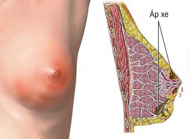 Áp xe vú do vi khuẩn gây ra, khiến tích tụ mủ trong vú.
