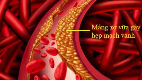 """Bệnh hẹp mạch vành và nguy cơ nhồi máu cơ tim """"rình rập"""""""