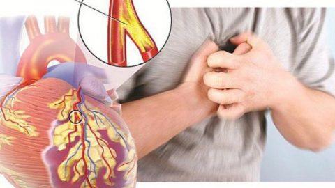 Hiểu rõ về bệnh mạch vành mạn để nhận diện và điều trị hiệu quả
