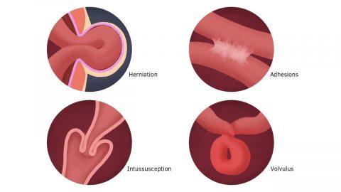 Triệu chứng cảnh báo bị tắc ruột, cách chẩn đoán và điều trị