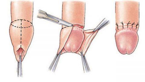 Cắt bao quy đầu là gì và quy trình cắt bao quy đầu thế nào?