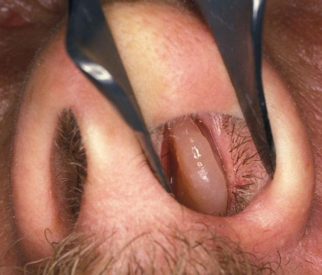 Hình ảnh một polyp xoang mũi