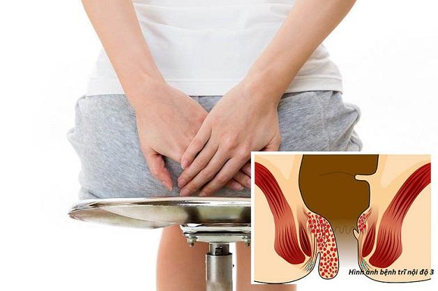 Tiến hành cắt trĩ nội độ 3 khi xuất hiện biến chứng