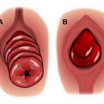 Phẫu thuật cắt trĩ nội độ 3: có thực sự cần thiết không?