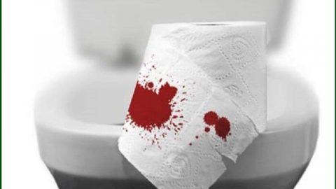 Cắt trĩ xong đi ngoài ra máu có nguy hiểm không?