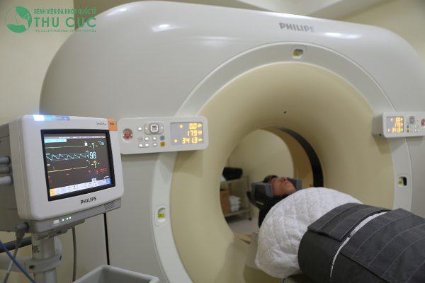 chụp ct giúp chẩn đoán thiếu máu não