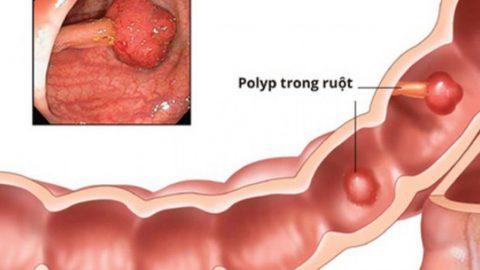 Những điều cần phải biết về polyp đại trực tràng