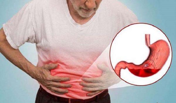 Dạ dày chịu tổn thương dẫn đến những cơn đau âm ỉ kéo dài