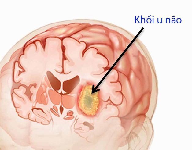 dấu hiệu cảnh báo bệnh u não