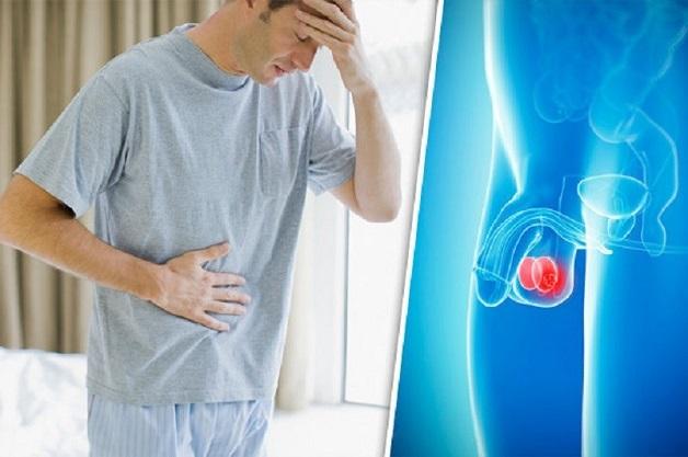 Đau tinh hoàn là một trong những biểu hiện phổ biến của ung thư