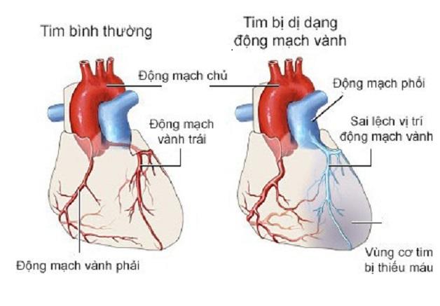 Những khiếm khuyết của động mạch vành có thể khiến mạch vành bị dị dạng