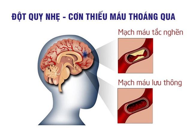 Đột quỵ nhẹ là tình trạng máu ngưng chảy tới não trong một khoảng thời gian ngắn.