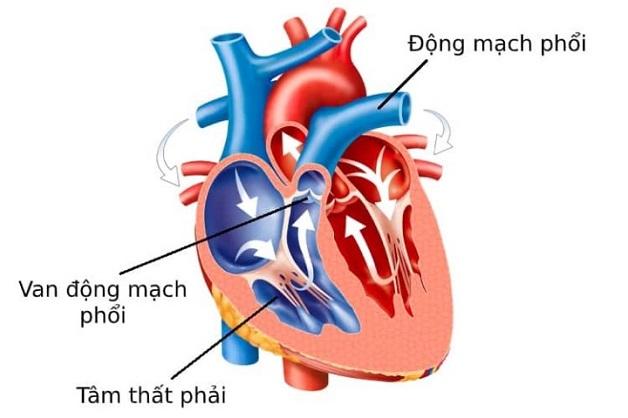 Van động mạch phổi không đóng chặt có thể khiến một lượng máu chảy ngược lại tâm thất, gây ảnh hưởng đến hoạt động của tim