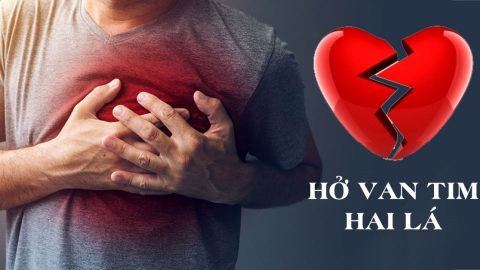 Hở van tim 2 lá 1/4: Không nguy hiểm nhưng chớ coi thường