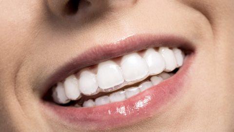 5 điều không thể bỏ qua về nắn chỉnh răng bằng invisalign