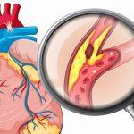 Đừng chủ quan trước những nguyên nhân bệnh mạch vành