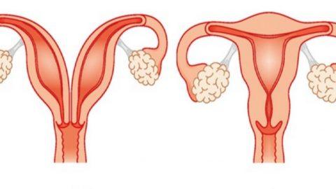 Nguyên nhân bị tử cung đôi và cách điều trị an toàn