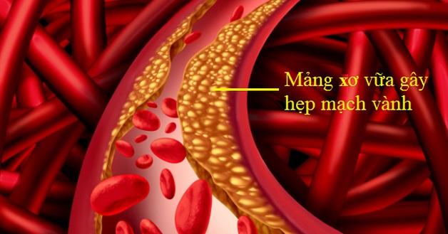 Bệnh hẹp mạch vành gây ra bởi các mảng xơ vữa nếu không được điều trị kịp thời thì có thể dẫn tới nhiều biến cố tim mạch, trong đó có nhồi máu cơ tim.