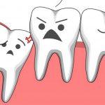 Nhổ răng khôn sau bao lâu thì lành, bạn có biết?