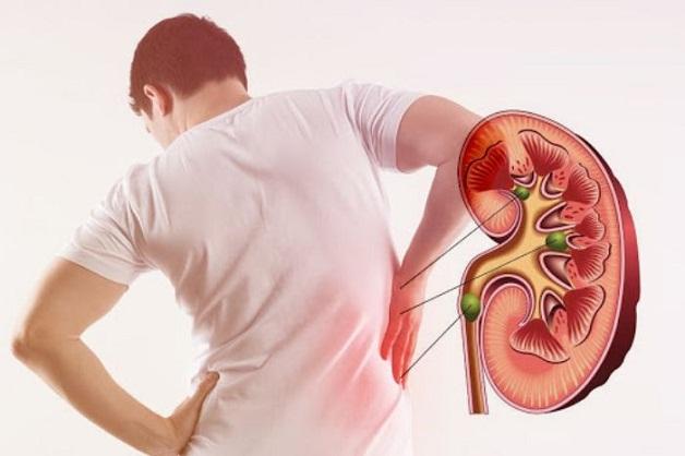 Tìm hiểu quy trình tán sỏi thận qua da điều trị sỏi kích thước lớn