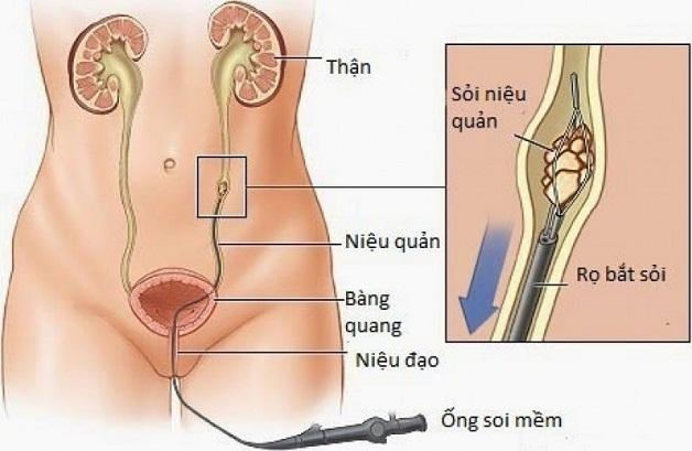 Tán sỏi thận bằng ống soi mềm giúp bảo tồn tối đa chức năng thận
