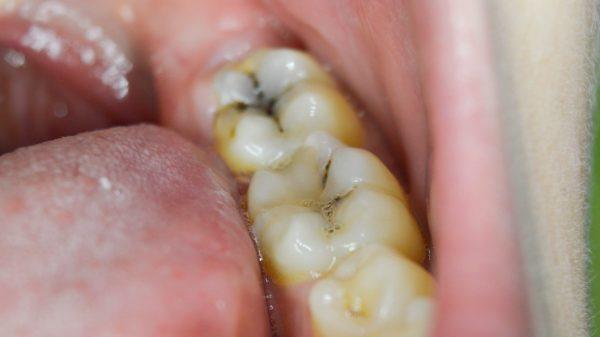 bị buốt răng hàm