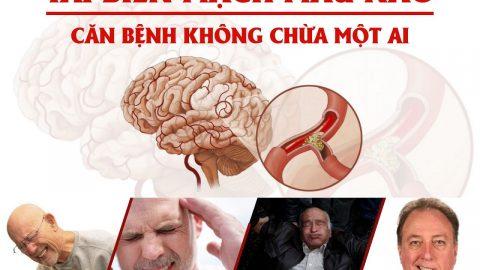 Những điều cần biết về tai biến mạch máu não để phòng tránh hiệu quả