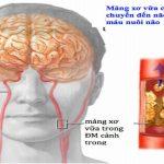 Thiếu máu não có triệu chứng gì? Lời khuyên từ chuyên gia