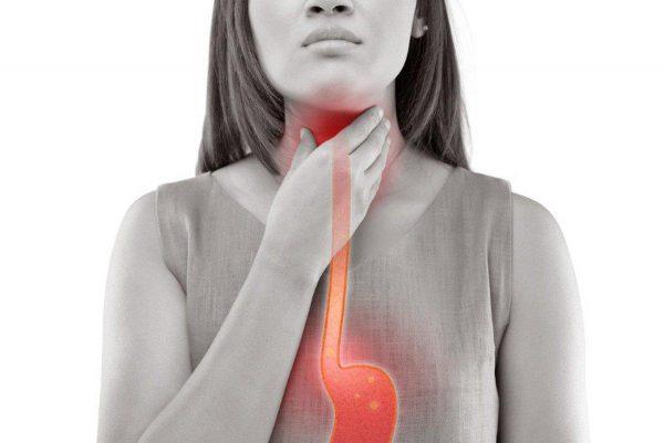 Trào ngược dạ dày khó thở có thể gây viêm, nhiễm trùng thực quản nếu không điều trị đúng cách