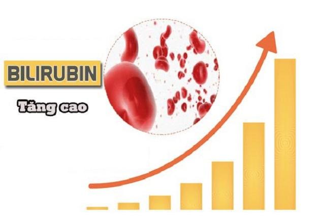 Nguyên nhân chủ yếu dẫn đến hiện tượng vàng da ở trẻ sơ sinh là do máu có nồng độ sắc tố bilirubin cao.