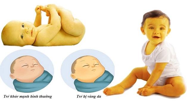 Trẻ sơ sinh bị vàng da do bệnh lý thường vàng da toàn thân, từ lòng bàn tay, bàn chân, kết mạc mắt
