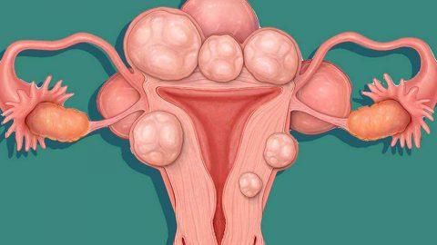 U xơ tử cung là gì có nguy hiểm không?