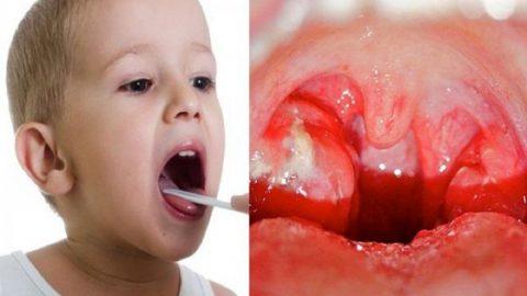 Viêm họng mủ ở trẻ em: những điều ba mẹ cần biết