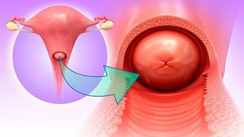 Biến chứng của viêm lộ tuyến cổ tử cung và phương pháp điều trị