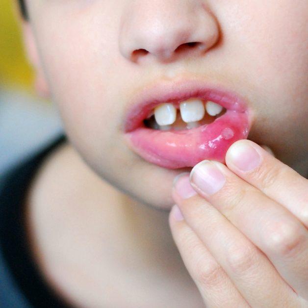 bệnh viêm loét niêm mạc miệng ở trẻ em
