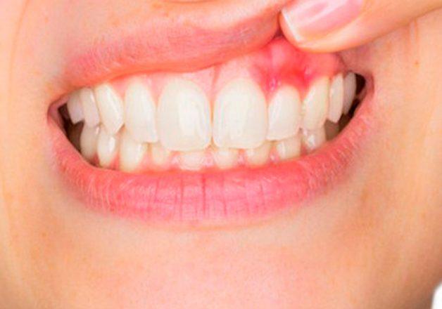 Viêm lợi gây ê buốt răng