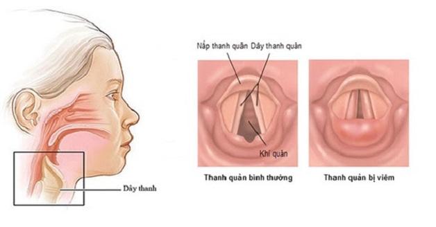 Viêm thanh quản là tình trạng tổn thương ở thanh quản, dây thanh âm trong cổ họng bị kích thích, sưng đỏ do sử dụng quá mức hoặc vi khuẩn tấn công gây nhiễm trùng.