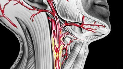 Xơ vữa động mạch cảnh là gì? Nguyên nhân, triệu chứng