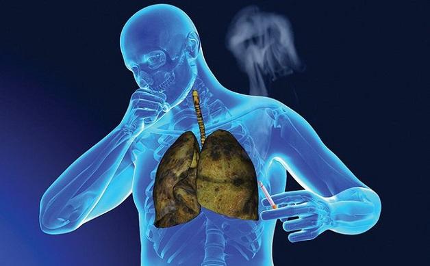 khám tầm soát ung thư phổi là gì