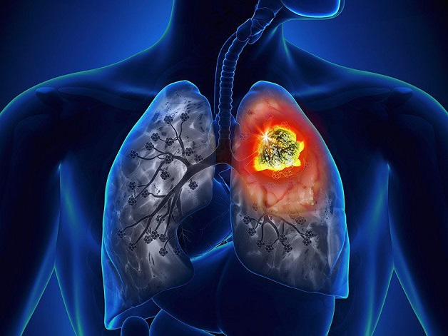 vì sao cần khám tầm soát ung thư phổi