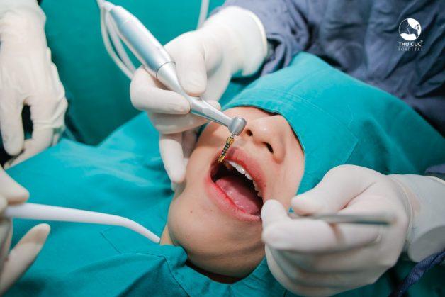 quá trình cấy ghép implant