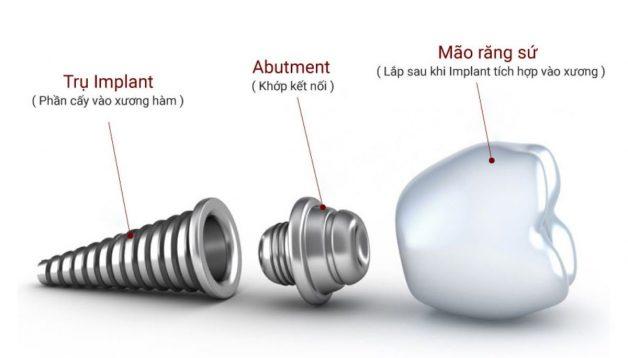 Abutment có vai trò vô cùng quan trọng trọng việc kết nối trụ implant với mão sứ răng