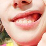 Áp xe răng sữa có nên nhổ răng không, bài viết dưới đây sẽ giải đáp