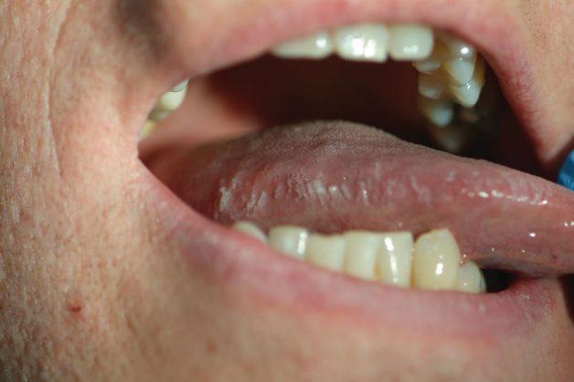 Với bạch sản dạng lông, triệu chứng thường gặp là lông xuất hiện, có những mảng trắng mờ dạng nếp gấp hoặc đường lằn ở hai bên đầu lưỡi