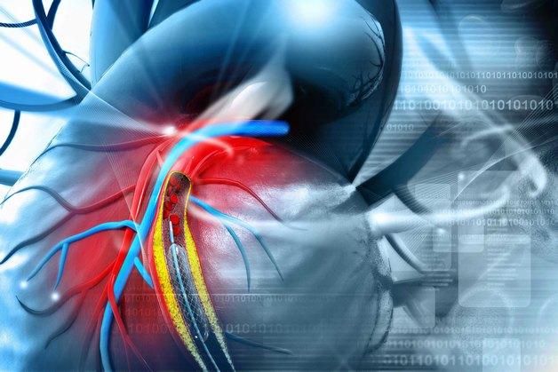 Bệnh mạch vành là gì