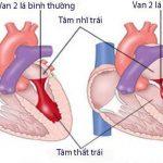 Bị hẹp van tim hai lá: Nguyên nhân và cách điều trị
