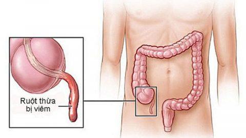 Cắt ruột thừa: chỉ định, quy trình và cách chăm sóc sau mổ