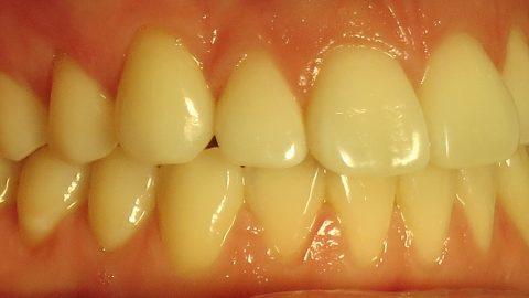 Những phương pháp hiệu quả nhất điều trị chân răng bị vàng