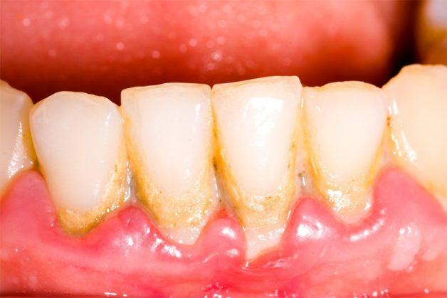 chân răng bị vàng